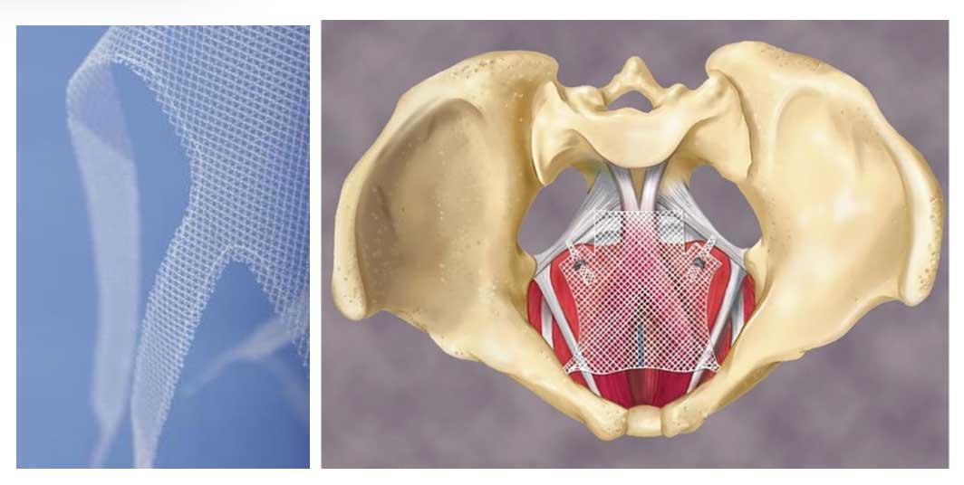 Prise en charge descentes d'organe - Centre gynécologie Aubagne